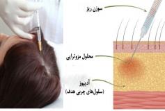 مزو ترابی شیوه ای برای کلفت شدن موهای نازک