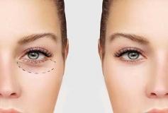 نکاتی درباره جراحی زیبایی پلک