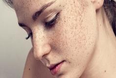 کک و مک صورت را چگونه درمان کنیم؟