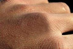 با خزان زدگي پوستمان چه کنيم؟