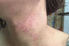 5 علت شایع جوش در بدن و راه حل درمان آنها