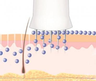 میکرونیدلینگ طبیعی ترین و موثرترین روش جوانسازی و ترمیم پوست