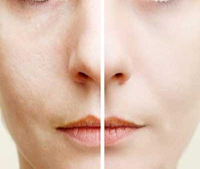 راههای طبیعی و دائمی برای کاهش منافذ پوست