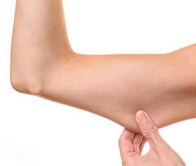 ۷ گام موثر برای سفت کردن پوست بعد از کاهش وزن شدید